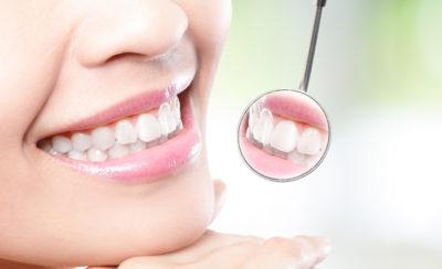 wybielanie-zebow-stomatolog-wroclaw